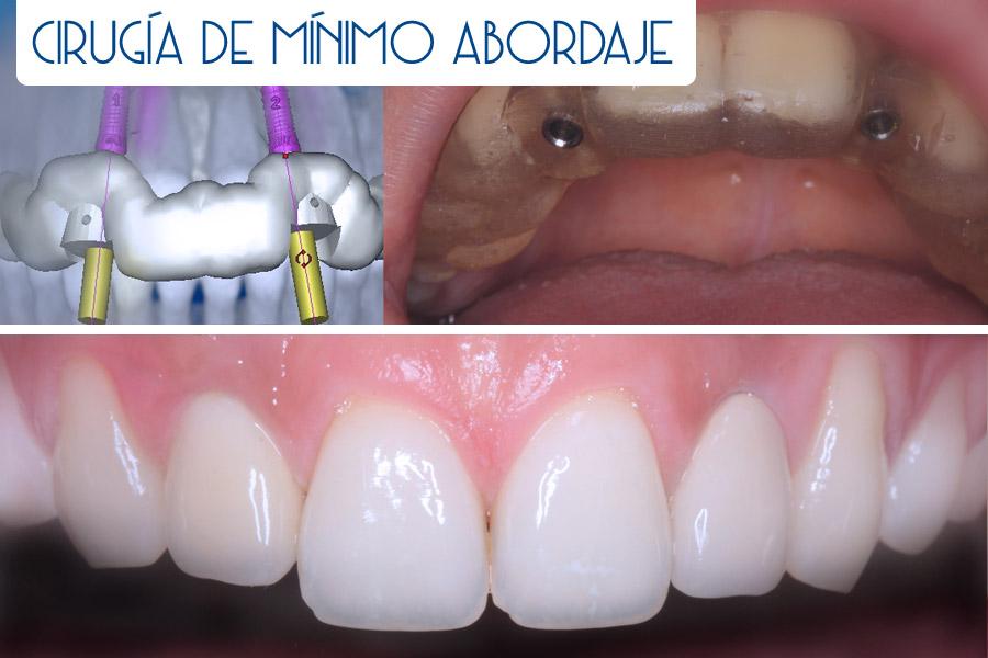 Cirugía oral de mínimo abordaje