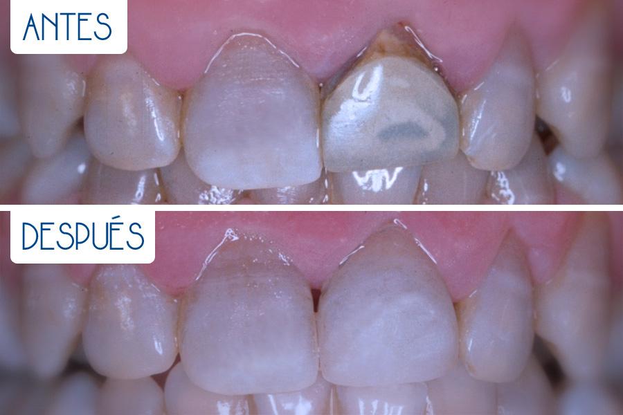 Odontología general restauración