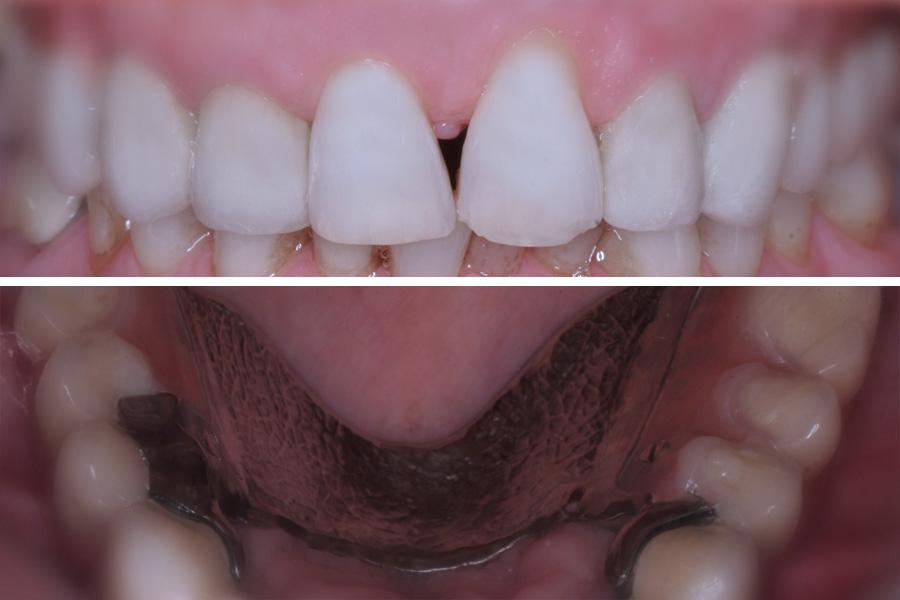 Prótesis dental convencional removible
