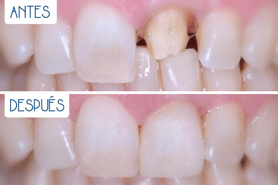 Prótesis dental convencional