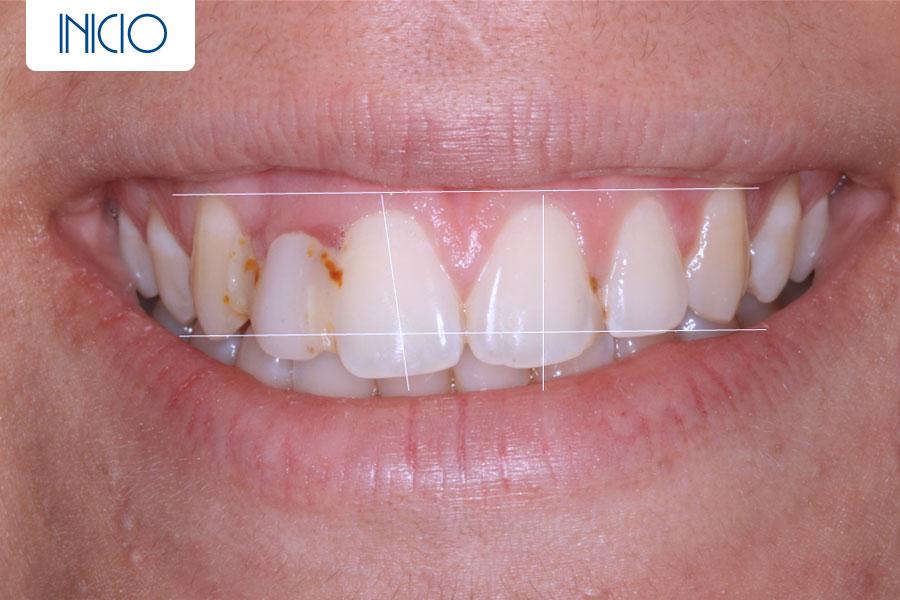 Inicio - Agenesia lateral más implante más cosmética dental