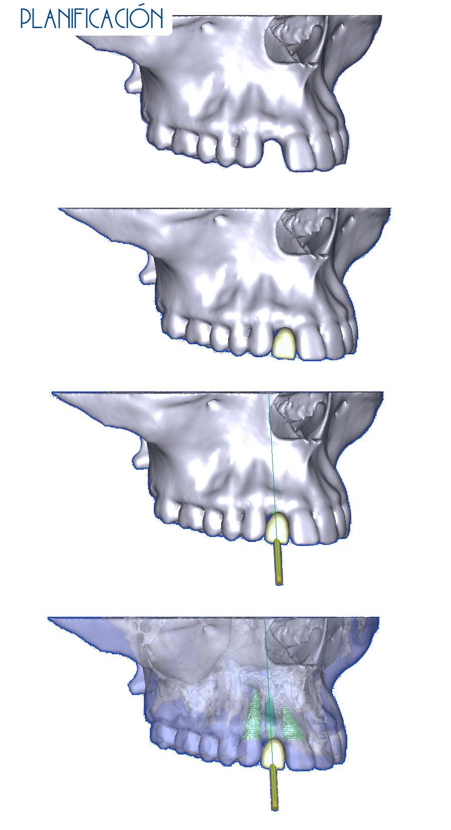 Planificación - Agenesia lateral más implante más cosmética dental