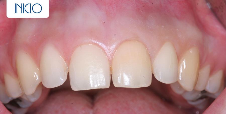 Inicio - Blanqueamiento dental