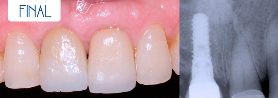 Final- Implante más corona de circonio