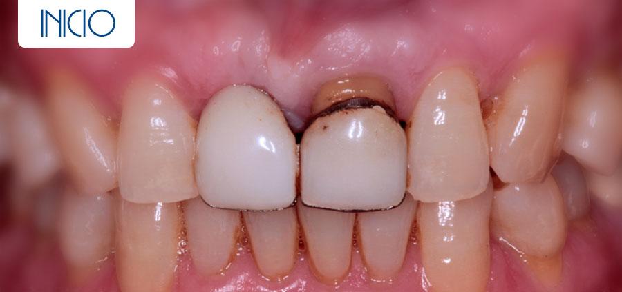 Inicio - Implante más corona de circonio