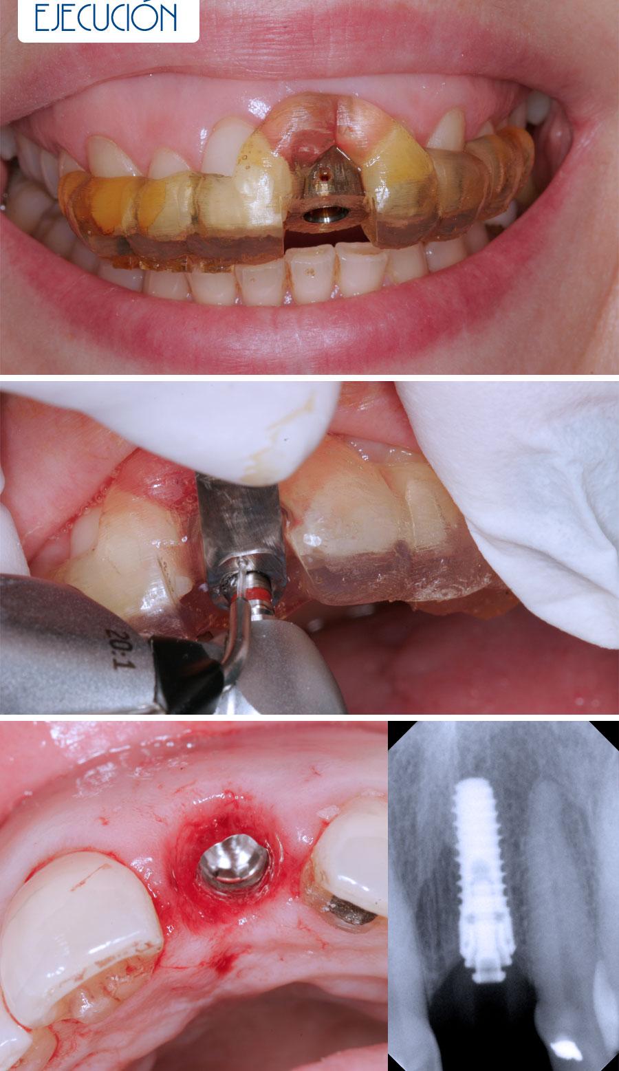 Ejecución - Sonrisa gingival más cirugía sin colgajo