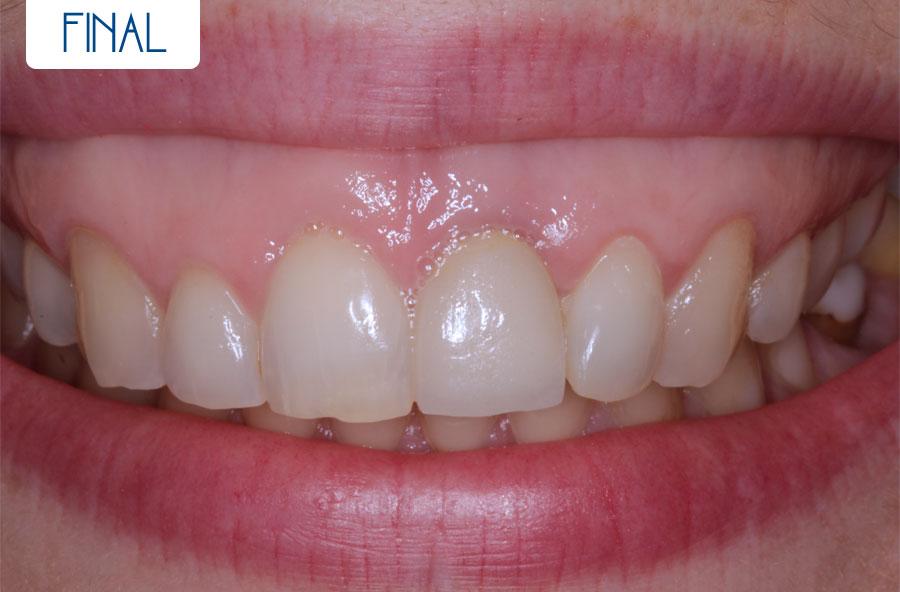 Final - Sonrisa gingival más cirugía sin colgajo